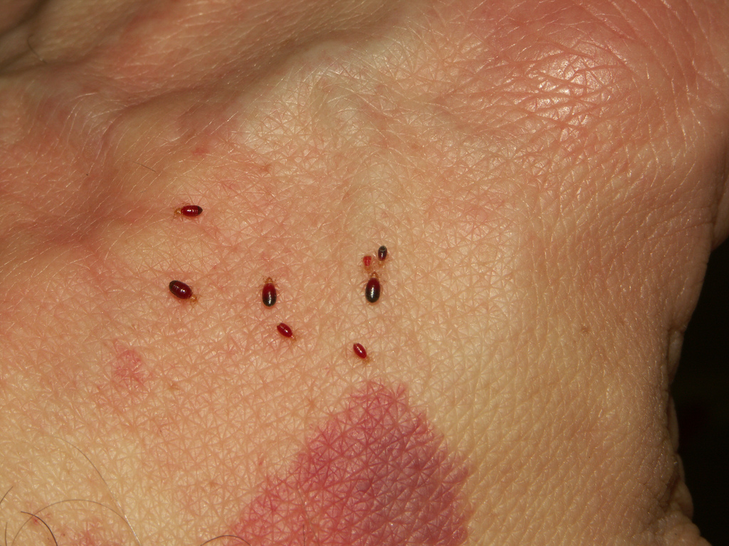 severe bed bug bites on human hand. Bed Bugs   Public Health Sanitation Program