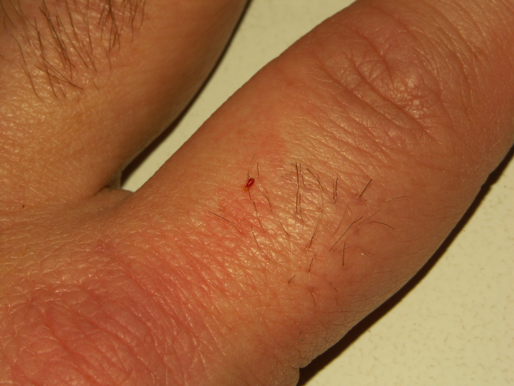 Baby bed bugs in bathroom - Mild Bed Bug Bites On Human Hand