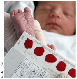 Photo of Newborn Screening heelstick